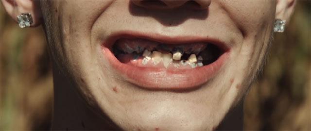 ラリーのボロボロに溶けた歯