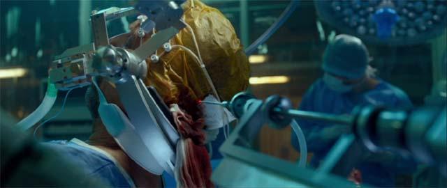 ジェリコ・スチュワート(ケビン・コスナー)の脳に器具を挿入するシーン