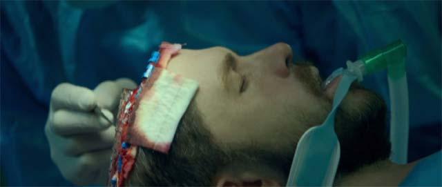 手術台に寝かせられたビル・ポープ(ライアン・レイノルズ)は脳がむき出しの状態